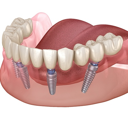 A diagram of All-on-4 dental implants in Savannah.