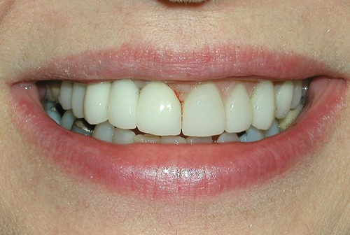 Perfectly restored and reshaped front teeth