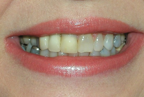 Yellowed damged and misshapen top front teeth