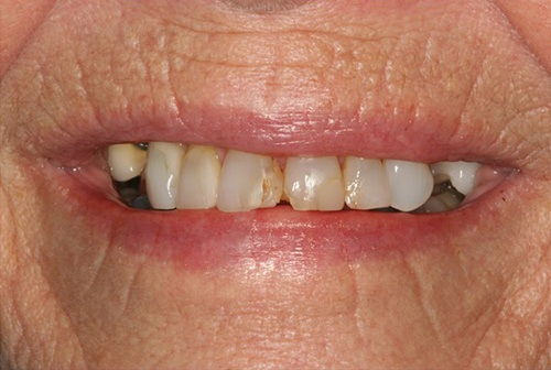 Severely decayed top teeth