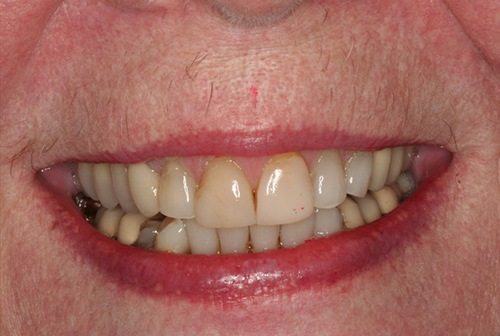 Top teeth with yellow coloring at gums