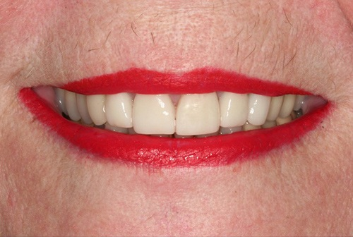 Renewed oral health and dental appearance