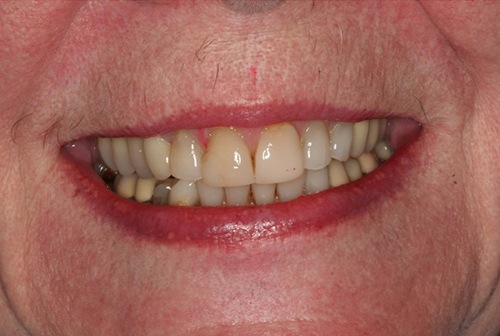 Damaged teeth and gums