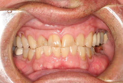Severely damaged teeth with extensive decay
