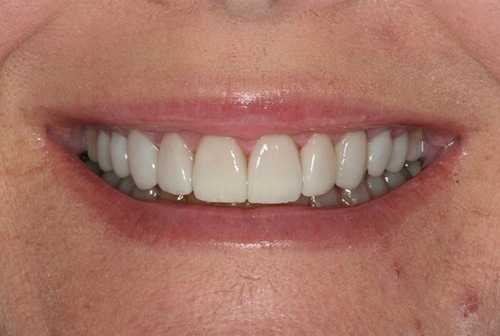 Healthy smile after gum tissue reshaping