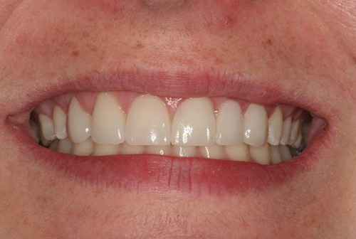 Smile after cosmetic enhancement