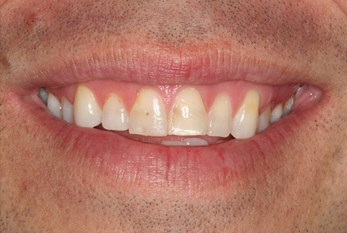 Irregularly sized top front teeth