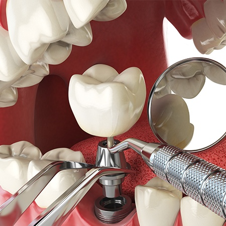 Animation of dental implant placement process