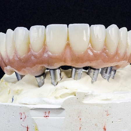 Model of implant-retained dentures on ceramic base