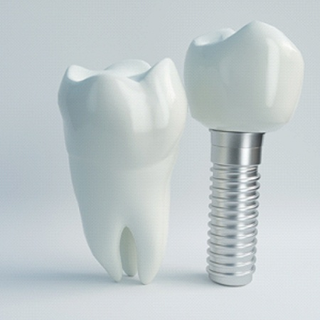 Natural tooth next to a dental implant
