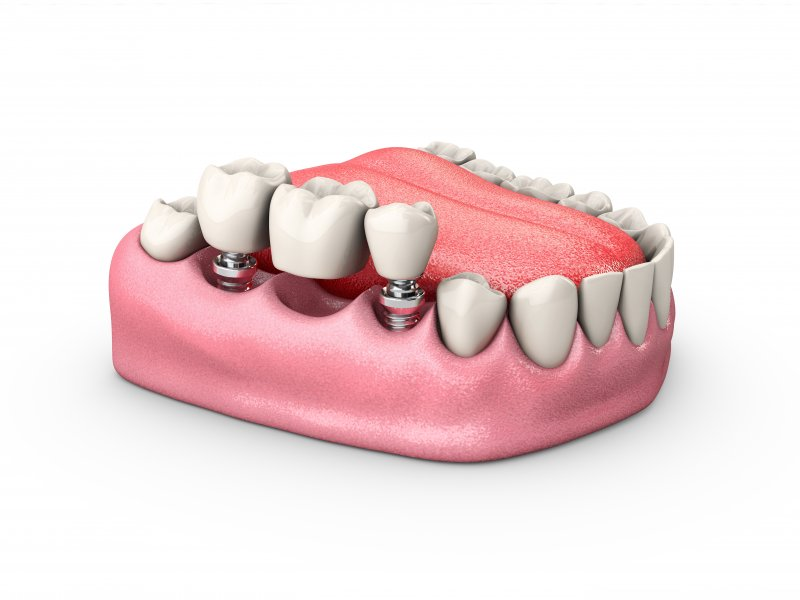 a dental implant bridge