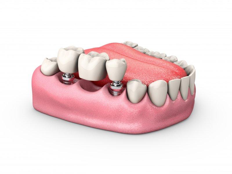 a dental implant bridge